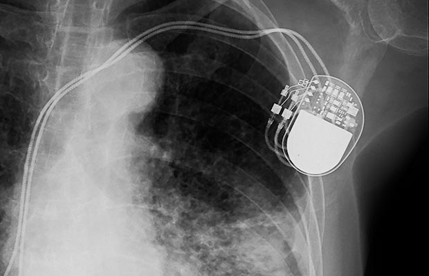 Pacemaker and magnetic bracelets